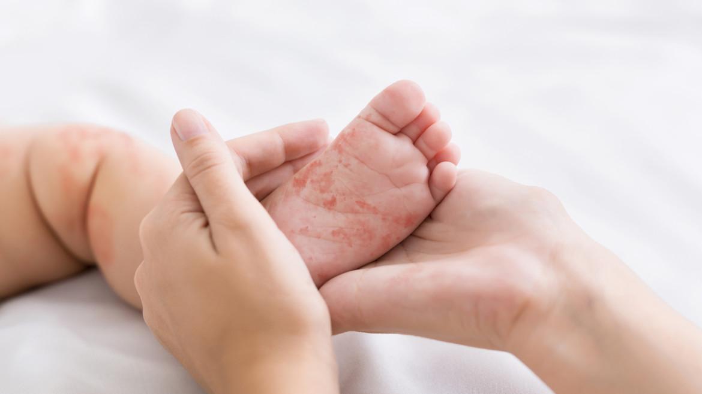 Вождь червоношкірих: алергічні реакції у немовлят та причини виникнення